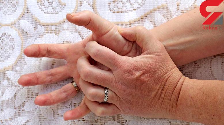 تمام آنچه که باید درباره خارش انگشتان دست و پا بدانید!