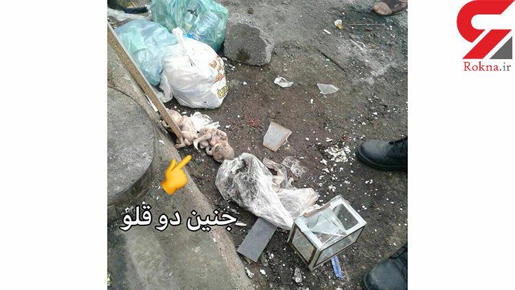 انتشار عکس  جنین 2 قلوها در زباله های رشت / خیلی تکاندهنده
