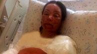 سوختگی دردناک معلم کودکان بی سرپرست +عکس