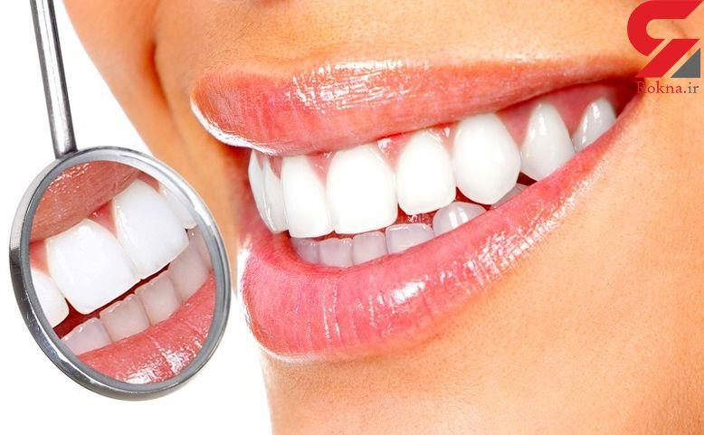 دندان های تان را با ترفندهای خانگی براق کنید