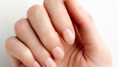 مشکلات ناخن نشانه چه بیماری هایی در بدن است؟