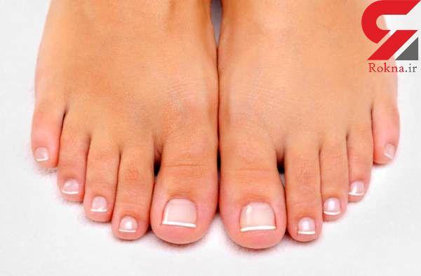 ایجاد تغییر در پاها خبر از چه بیماری هایی می دهند؟