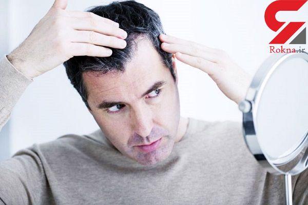 ترفندی برای خداحافظی با سفیدی مو