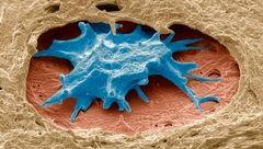 مرگبارترین سرطان زنانه قابل تشخیص شد