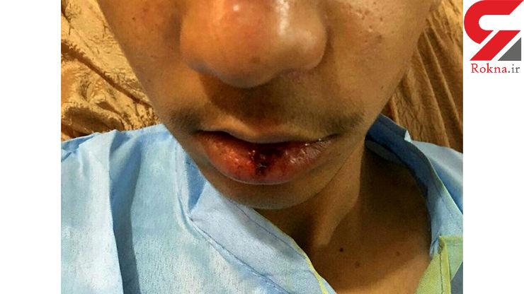 ضرب و شتم شدید دانشآموز جیرفتی توسط مدیر مدرسه + عکس
