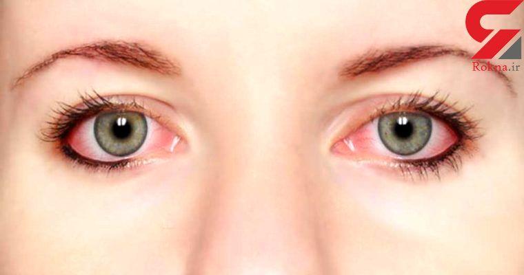 لکه های قرمز چشم نشانه چه بیماری هایی است؟