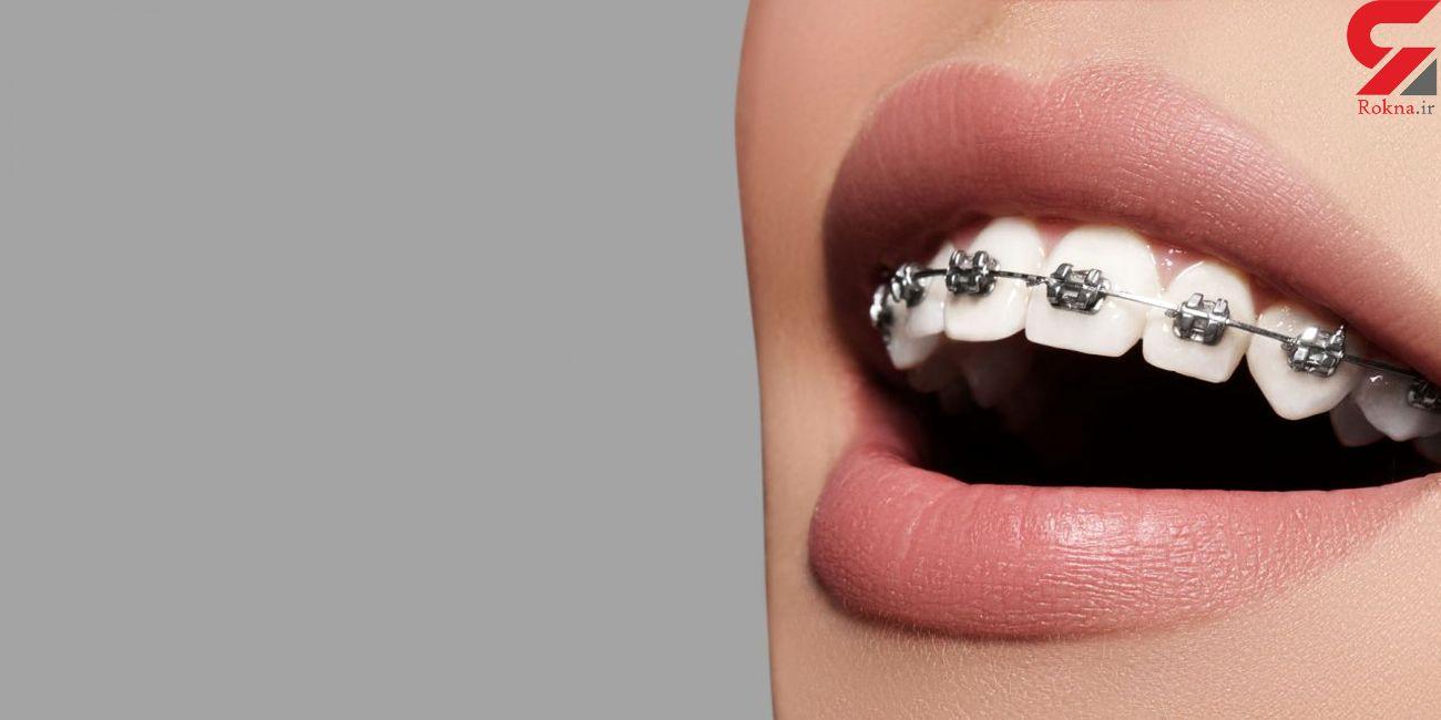 ارتودنسی، چه نقشی در درمان مشکلات دندانی دارد؟ /  بهترین سن برای ارتودنسی چه زمانی است؟