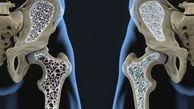 پوکی استخوان چه نشانه هایی دارد؟