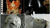 راز سلامت دندان های مردم روم باستان چه بود؟! + عکس های باورنکردنی