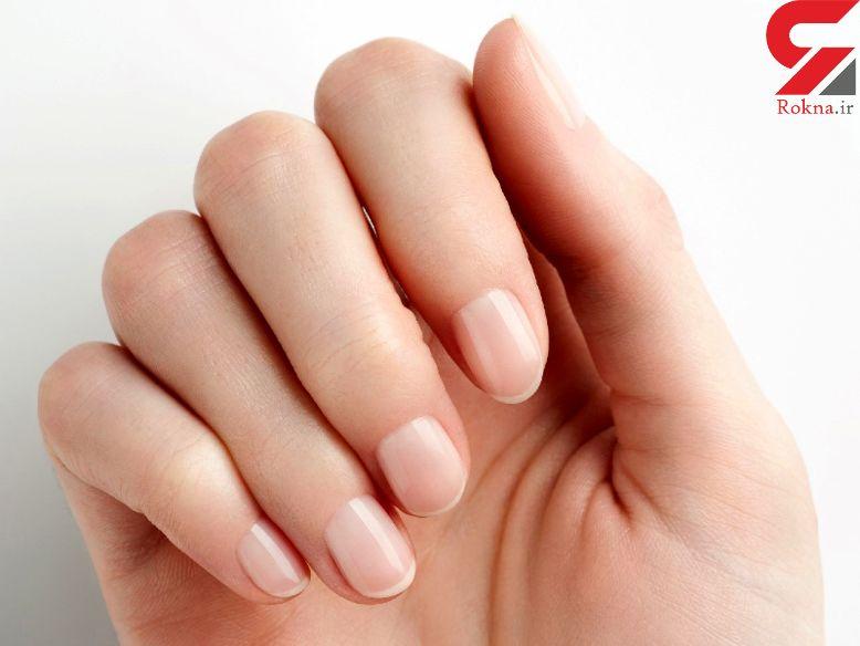 ناخن های خط خطی خبر از چه بیماری هایی می دهند؟