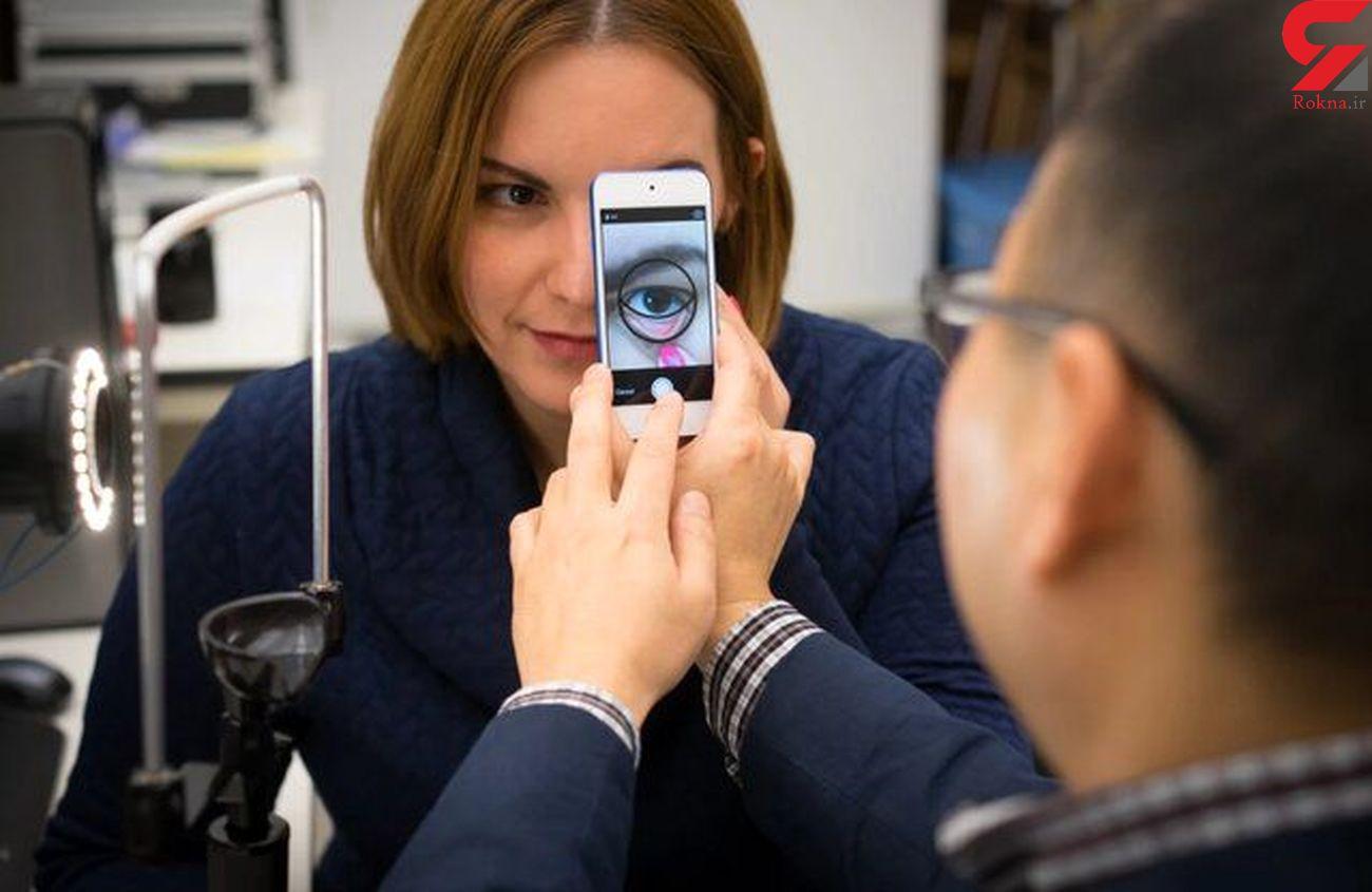 تشخیص کم خونی با یک نرم افزار تلفن همراه