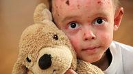 """شناسایی 850 کودک """"ایبی"""" در کشور/ بی توجهی 26 ماهه وزیر بهداشت به انجمن های بیماری های خاص"""