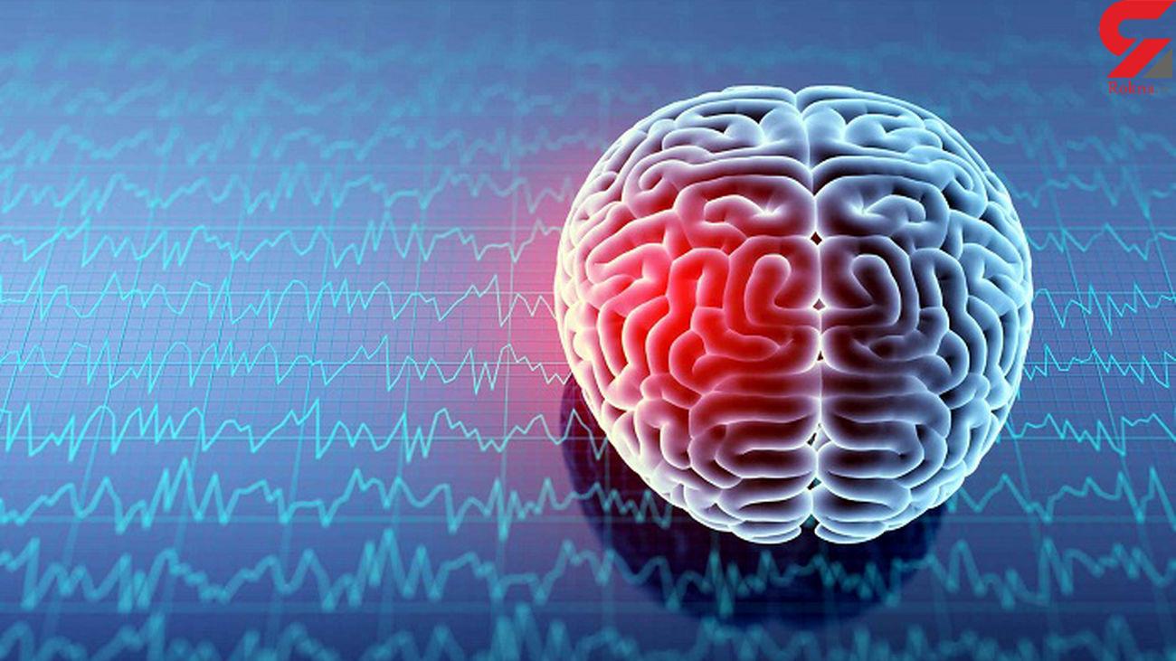 همه چیز از خونریزی در مغز / از علائم تا پیشگیری