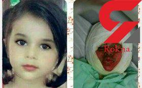 عکس دختر بچه زیبایی که در دیگ خورشت نذری افتاد و فاجعه رخ داد