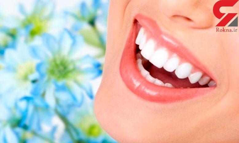 شیوه های خانگی برای داشتن دندان هایی سفید