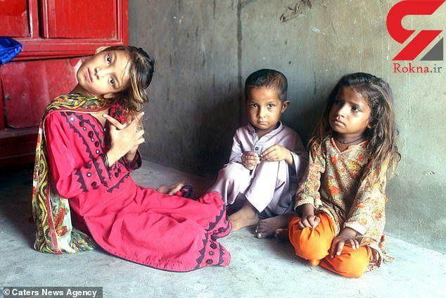 دختر 11 ساله به خاطر یک اختلال نادر به این روز درآمد+ تصاویر