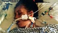 نیش پشه زن جوان را به کما برد! + عکس دردناک