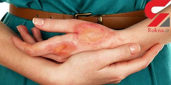 درمان های خانگی و فوری سوختگی های بدن