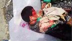 حمله وحشیانه سگهای ولگرد به پسر ۱۲ ساله در فردیس کرج+عکس