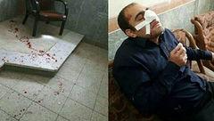 دستور وزیر آموزش و پرورش در پی کتک زدن ناجوانمردانه یک معلم در خوزستان + عکس