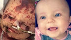 پزشکان 4 دست و پای این کودک 17 ماه را قطع کردند! +عکس 16+