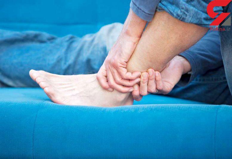 کبودیهای بی دلیل پوست چه علت هایی دارد؟