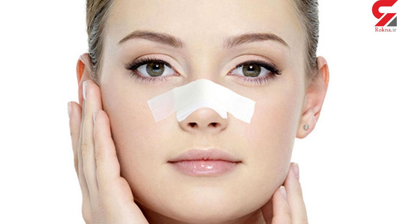 هر آنچه باید درباره چسب زدن بینی بدانید
