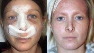بلای وحشتناکی که پس از جراحی زیبایی بینی سر زن ۴۱ ساله آمد +عکس