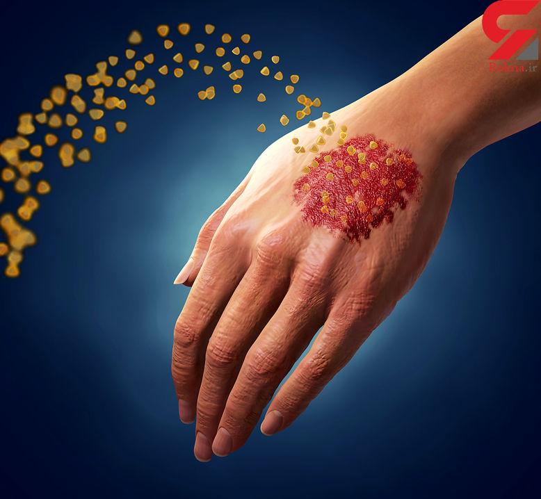 کمبود ویتامین دی عامل اصلی این بیماری پوستی است