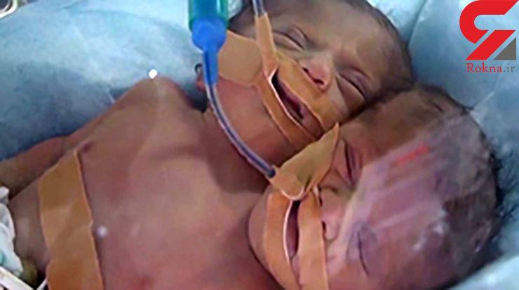 تولد نوزاد دو سر در نواز غزه + فیلم و عکس