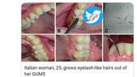 حادثه ای عجیب /  دندان های یک زن ایتالیایی مژه درآورد + عکس