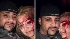 سلفی پسر جوان پس از آزار وحشیانه یک دختر جنجال به پا کرد +عکس