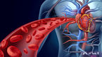 نشانه های بیماری های قلبی و عروقی