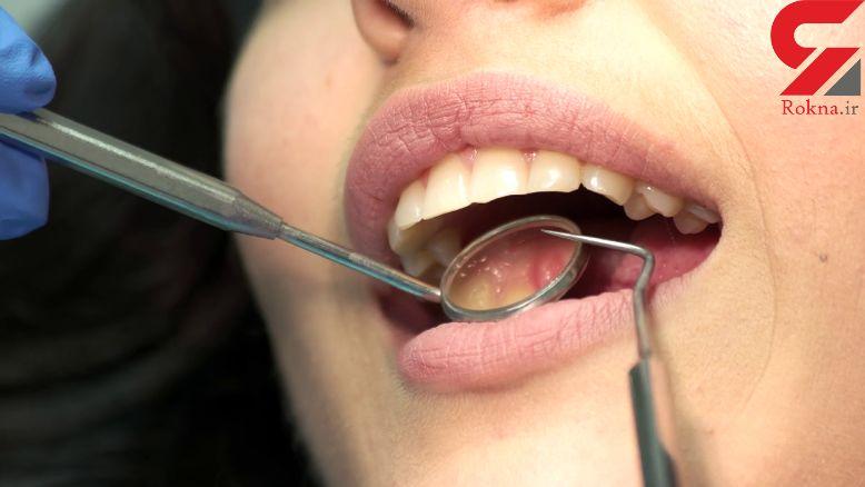بیماری که بر سلامت دندان ها  اثر می گذارد