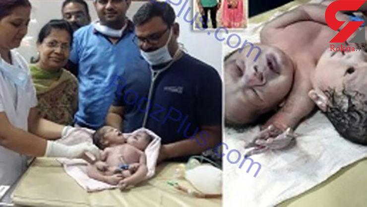 تولد نوزاد دو سر در هندوستان +عکس