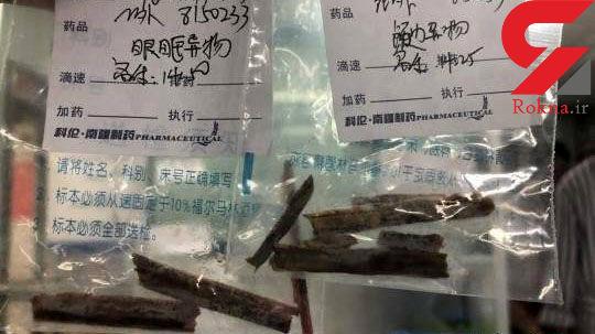 علت عجیب سردردهای 5 ساله مرد چینی+عکس