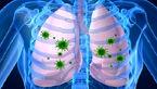 عفونت تنفسی و خطر بیماری قلبی تا ۱۷ برابر افزایش