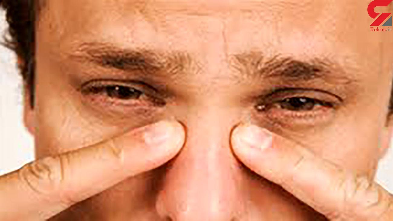دلایل گرفتگی بینی چیست؟