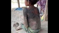 سرگذشت غم انگیز دختر بچه سنگی + عکس