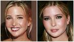 دختر ترامپ قبل و بعد از عمل زیبایی + عکس