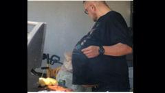 غده 34 کیلویی از شکم مرد 47 ساله خارج شد!+عکس
