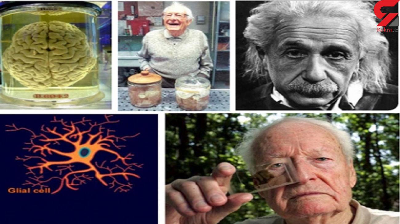 پشت پرده تشریح بدون اجازه مغز اینشتین چیست ؟ + عکس