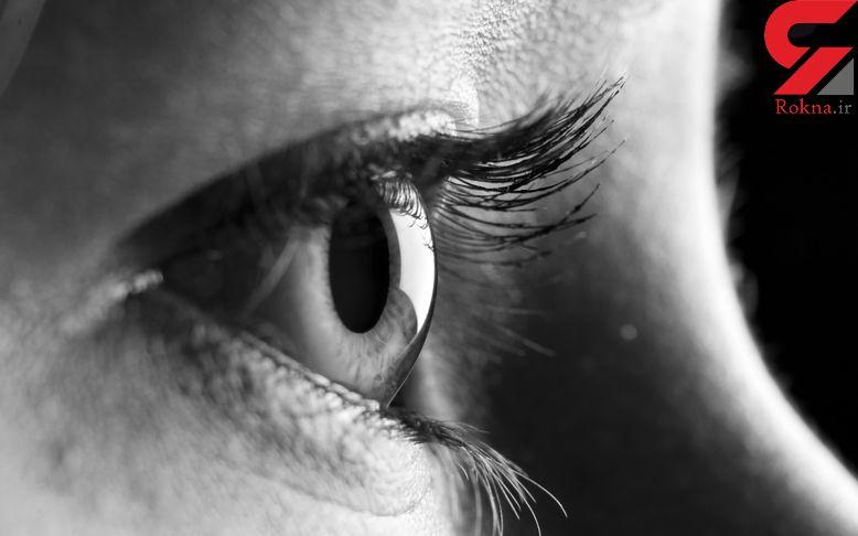 عفونتهای چشمی را جدی بگیرید
