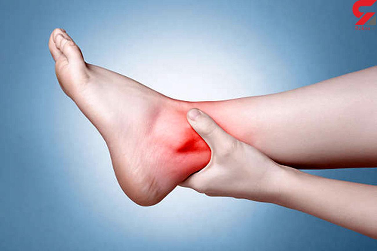درمان التهاب مفاصل در طب سنتی