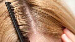 ساده ترین درمان های شوره سر