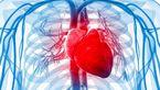 بیماری هایی که عامل گرفتگی رگ های قلب هستند