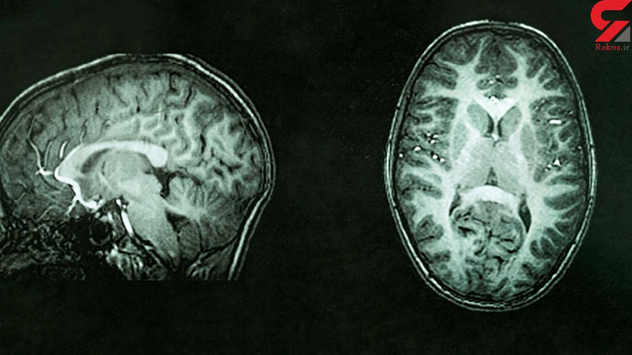 Measuring brain tissue damage can identify cognitive decline