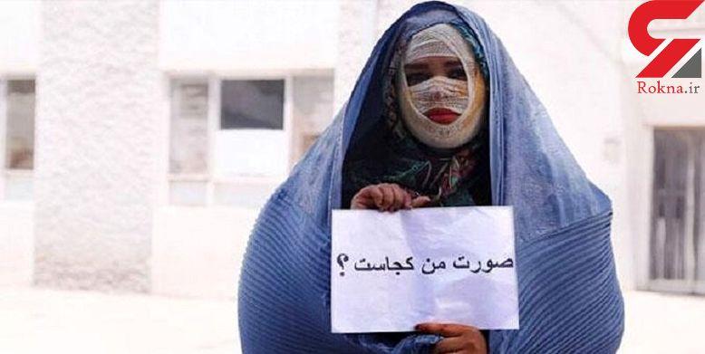 مجید ۷ سال زندان بود تا حکم قصاص را گرفتم / قصاص اسیدپاش عین عدالت است +عکس