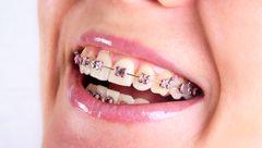 افزایش پوسیدگی دندان با لمینیت و کامپوزیت