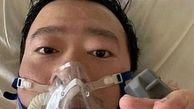 مرگ پزشک چینی کاشف ویروس کرونا بر اثر این بیماری +عکس